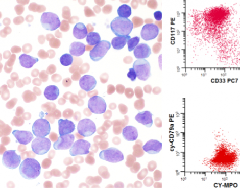 Essential Role of Flow Cytometry in the Diagnosis of Acute Myeloid Leukemia